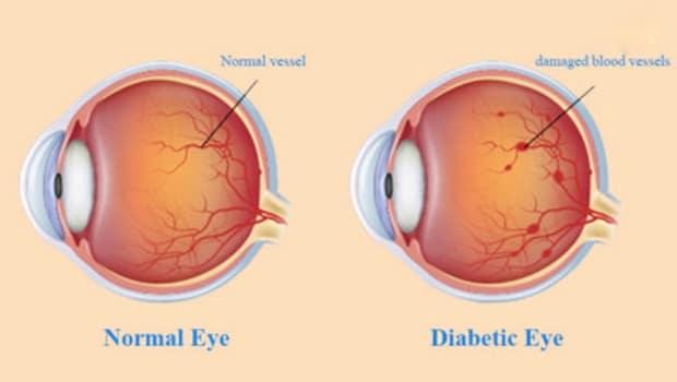 اعتلال الشبكية السكري Diabetic retinopathy أعراضه وماهي أهم طرق علاجه