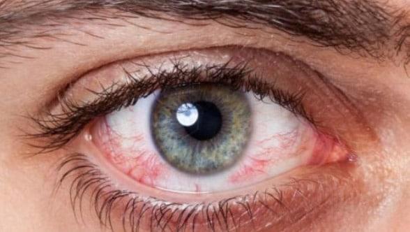 ارتفاع ضغط العين أعراضه وأسبابه بالإضافة إلى طرق علاجه