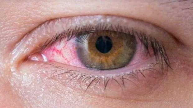 حساسية العين أعراضها وأسبابها بالإضافة إلى أهم طرق علاجها