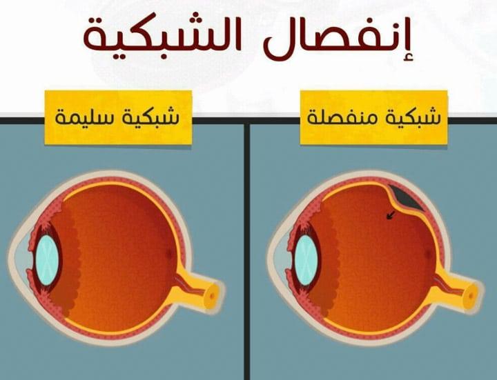 انفصال الشبكية أعراضه وأسبابه بالإضافة إلى طرق علاجه