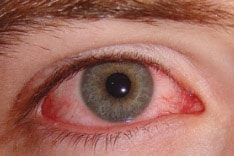 ارتفاع ضغط العين أعراضه وطرق علاجه بالأعشاب